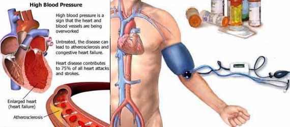 darah-tinggi-hipertensi